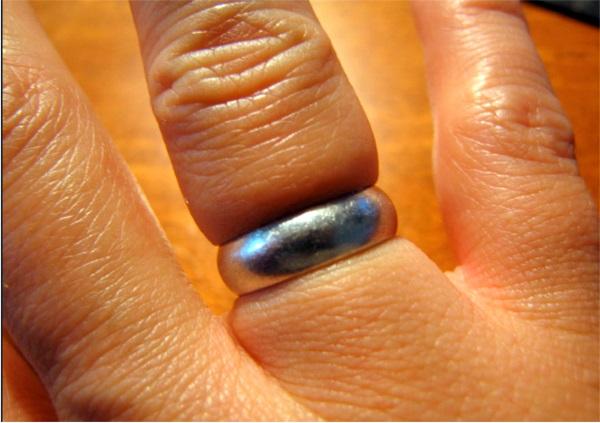 Как снять кольцо с опухшего пальца в домашних условиях