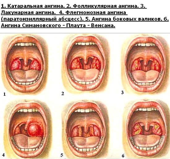 Профилактика ангины