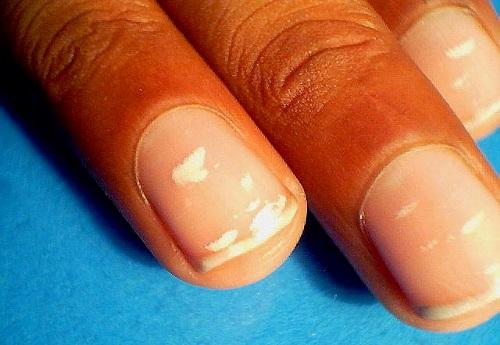 Белые точки на ногтях причина