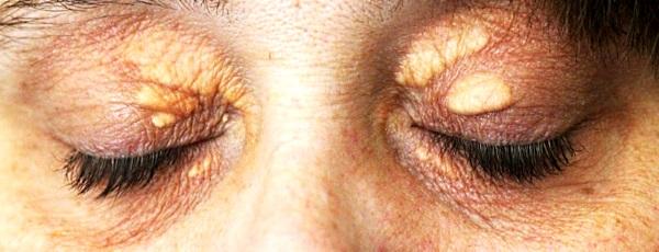 Ксантелазмы возле глаз