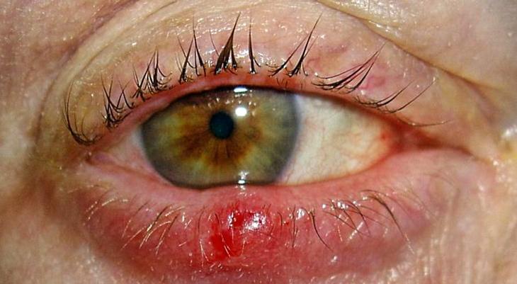 Лечение ячменя на глазу в домашних условиях быстро