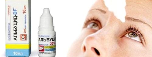 альбуцид от глазного ячменя