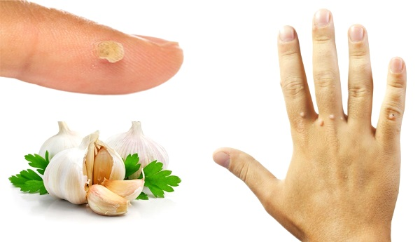 Народные средства от бородавок на руках и пальцах