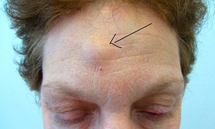 жировик на лице человека на лбу