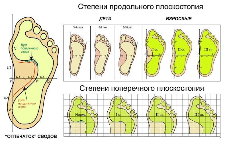 плоскостопие поперчный и продольный свод стопы