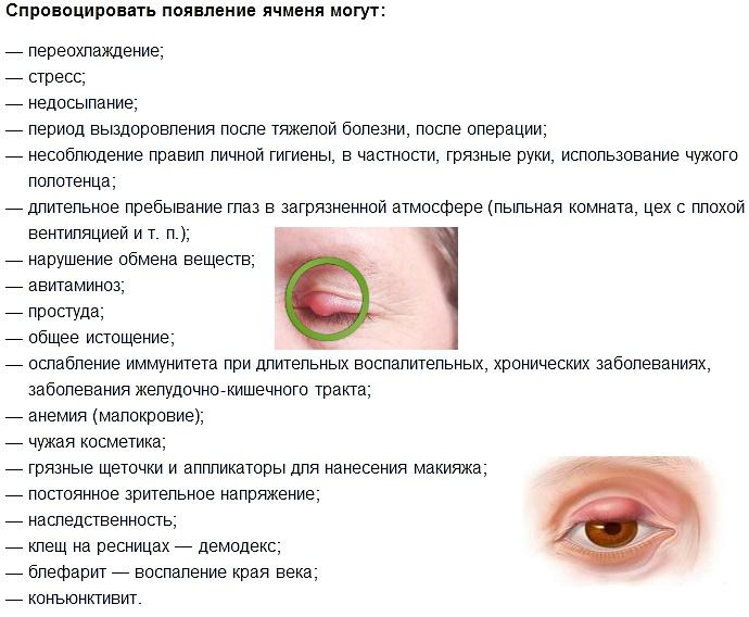 причины вызывающие ячмень на глазу