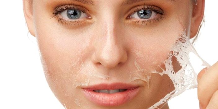 Как избавиться от угревой сыпи на лице
