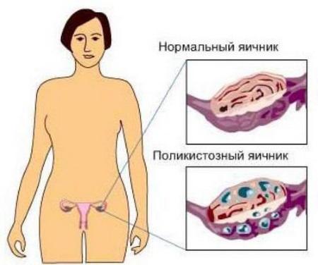 причина бесплодия у женщин